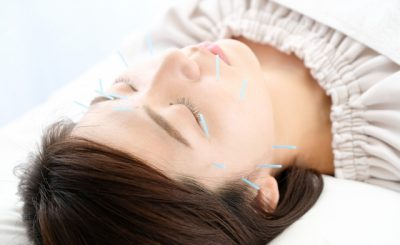 【美容鍼で小顔&美肌に】飯田橋・市ケ谷の口コミで評判の鍼灸院