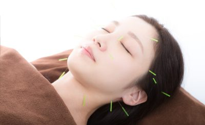 【美容鍼で小顔&美肌】西葛西・船堀で評判のおすすめ鍼灸サロン