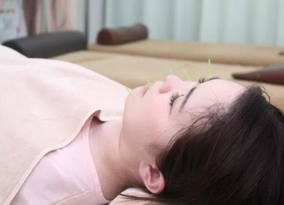 ワセダ接骨院・鍼灸マッサージ院 上野 美容鍼