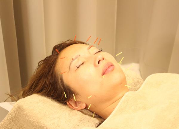 赤羽式はり整体院ReMake 恵比寿本院 鍼治療