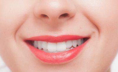 八王子駅で歯のクリーニング・歯石取りを行っている歯医者さん3選