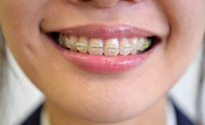 目立ちにくい矯正も!江古田駅近くで矯正歯科を行っている歯医者3選