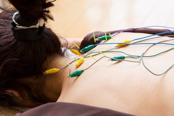 銀座ときた鍼灸治療院 東銀座 電気鍼