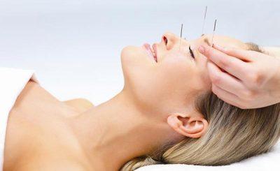 美容鍼で小顔&リフトアップ!経堂駅近くで人気のおすすめ鍼灸院3選