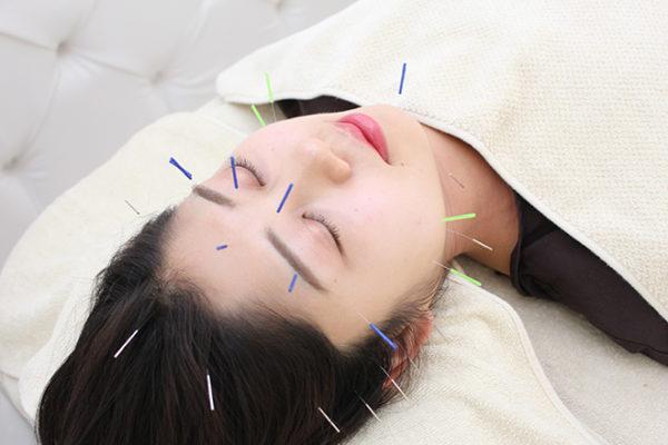 美容鍼灸院 acumond 渋谷 美容鍼