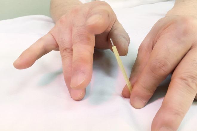 ながいし鍼灸治療院 経堂 鍼治療