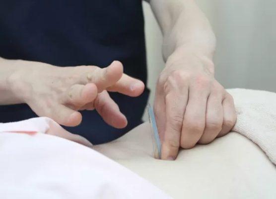 ワセダ接骨院・鍼灸マッサージ院 上野 鍼治療