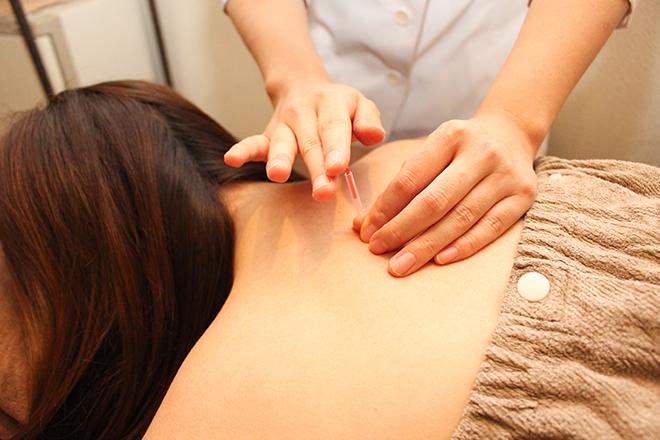 HARINIQ銀座 鍼灸治療