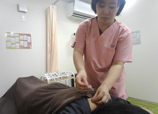 いいよし鍼灸接骨院 大山 鍼治療