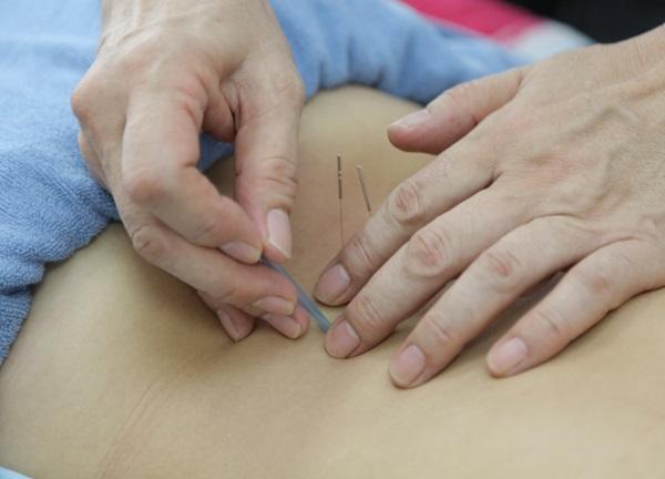 はりとおきゅうの専門治療院コイズミ 四ツ木 鍼治療