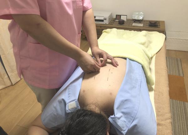 亀戸サニーデイ鍼灸院 鍼治療