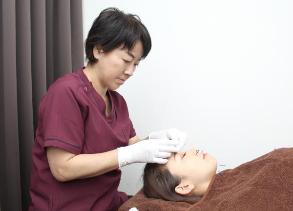 鍼灸サロンアイボリーローズ 新宿 美顔鍼