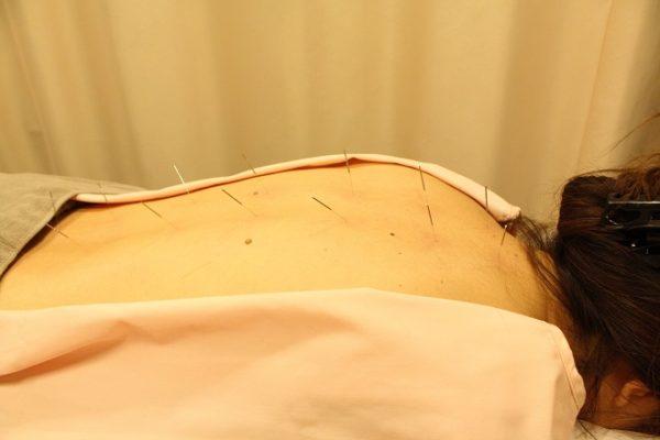 オリンピア鍼灸整骨院 千歳烏山 鍼治療